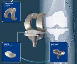 total-knee-replacement_2